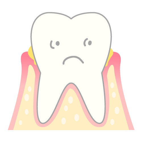 periodontosis_mechanism02
