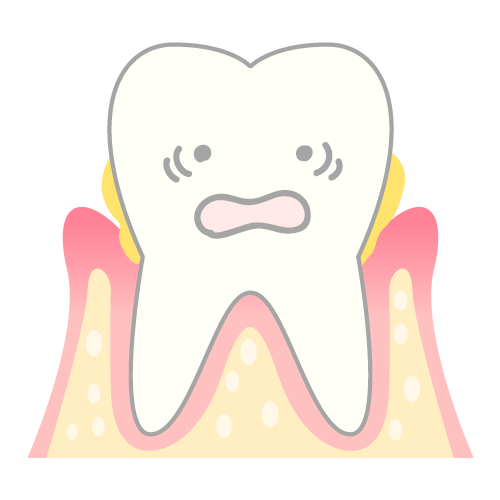 periodontosis_mechanism03